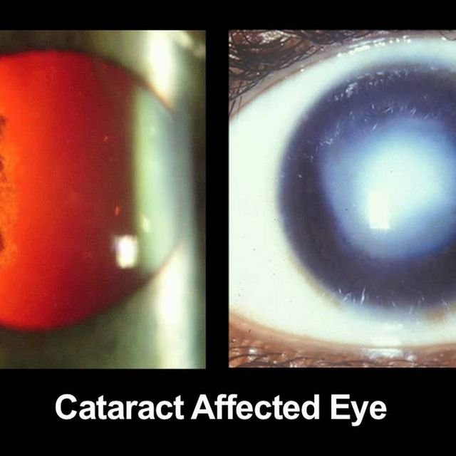 video: CATRA: Cataract Maps with Snap-on Eyepiece for Mobil... by Selbor